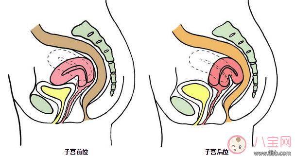 子宫后位怎么怀上 子宫后卫受孕姿势