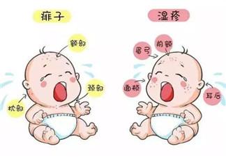 宝宝痱子和<font color='red'>湿疹</font>的区别 <font color='red'>湿疹</font>和痱子的区别图片